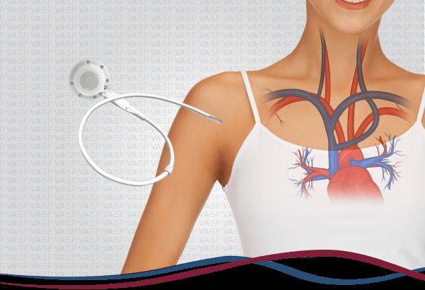 vascularsp-doencas-acessos-vasculares-cateter-quimioterapia-thumb