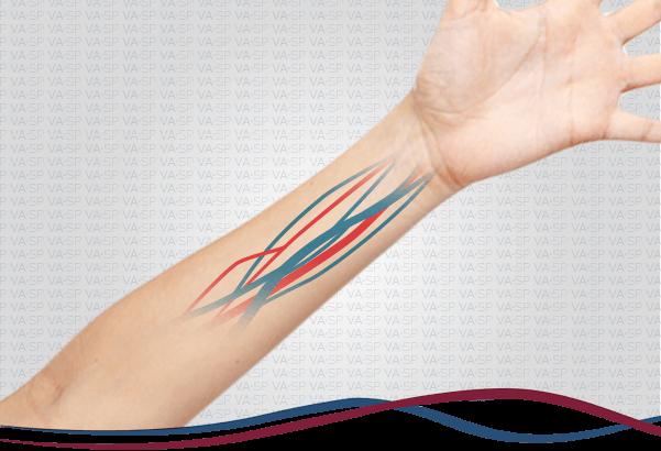 vascularsp-doencas-acessos-vasculares-fistula-hemodialise-thumb