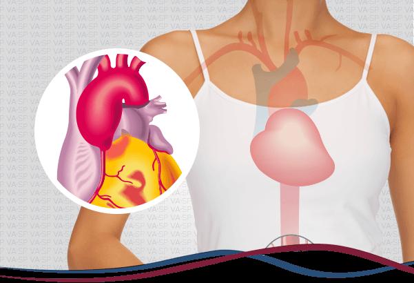 vascularsp-doencas-arteriais-aneurisma-de-aorta-toracica-thumb