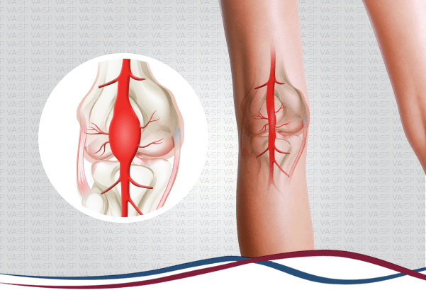 vascularsp-doencas-arteriais-aneurisma-de-arteria-poplitea-thumb