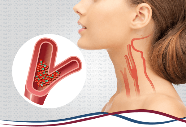 vascularsp-doencas-arteriais-doenca-arterial-carotidea-thumb