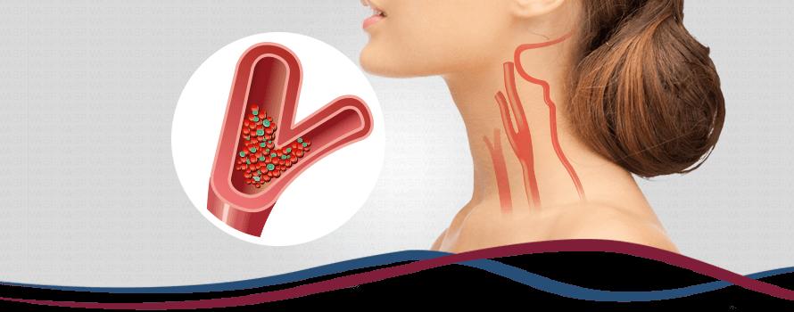Imagem Doença Arterial Carotídea