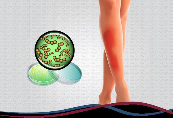 vascularsp-doencas-venosas-erisipela-e-celulite-thumb