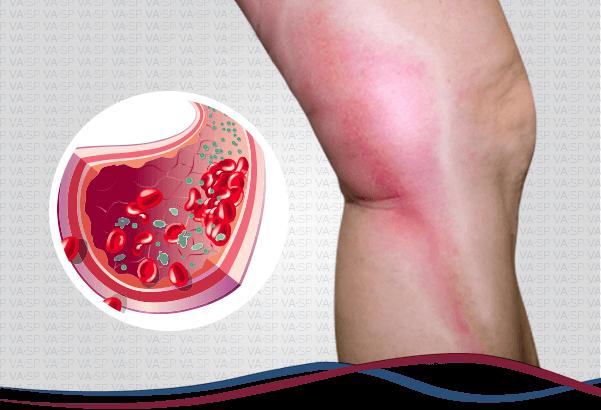 vascularsp-doencas-venosas-trombose-venosa-superficial-thumb