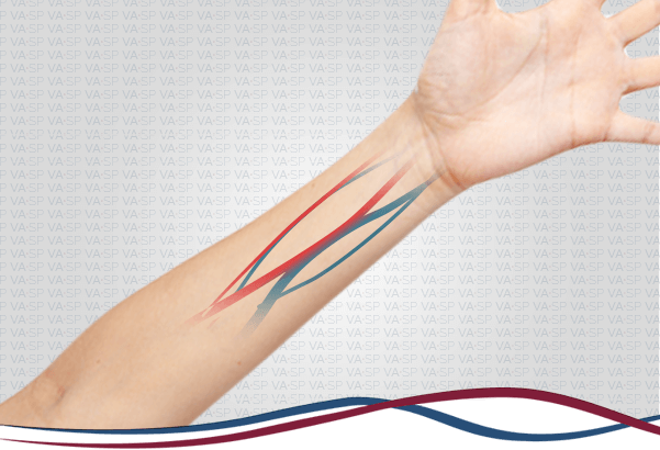 vascularsp-tratamentos-acessos-vasculares-confeccao-fistula-hemodialise-thumb