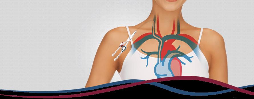 Imagem Cateteres para Hemodiálise