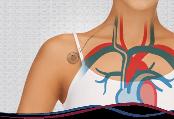 vascularsp-tratamentos-acessos-vasculares-implante-cateter-quimioterapia-thumb