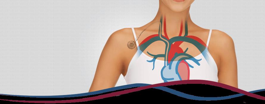 Imagem Cateteres para Quimioterapia