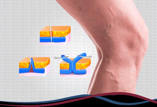 vascularsp-tratamentos-cirurgico-flebectomia-thumb