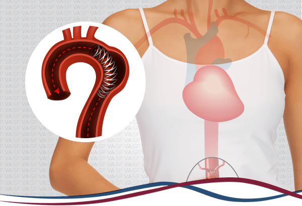 vascularsp-tratamentos-endovasculares-implante-aorta-toracica-thumb