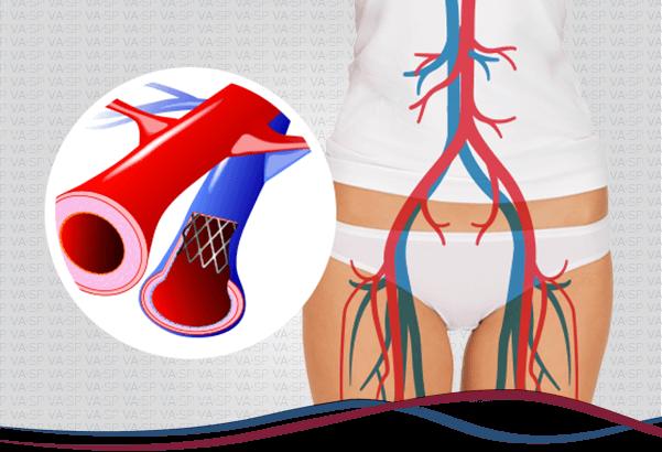 vascularsp-tratamentos-endovasculares-sindrome-cockett-thumb