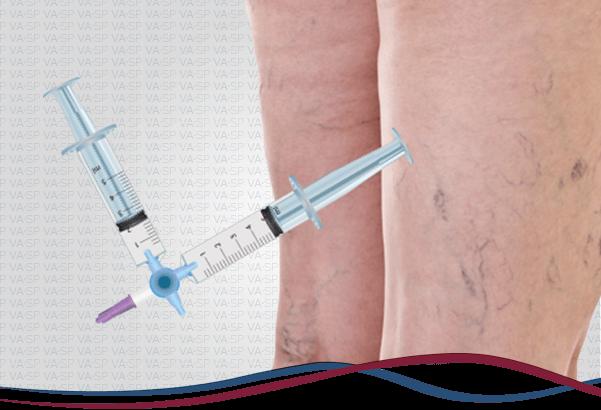 vascularsp-tratamentos-escleroterapia-espuma-densa-thumb