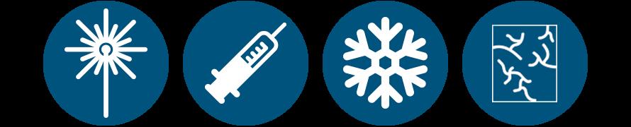 Ilustração CLaCS (Cryolaser and Cryosclerotherapy)
