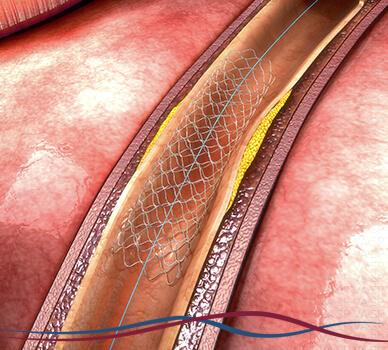 Imagem Doença Arterial Carotídea - Tratamento