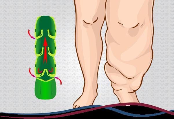 vascularsp-doencas-venosas-linfedema-thumb