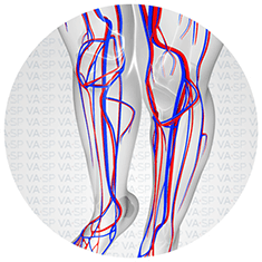 vascularsp-doencas-doencas-venosas