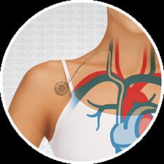 vascularsp-tratamentos-acessos-vasculares