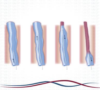 Imagem Cirurgia de Varizes (Laser Endovenoso) - Interior veia