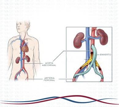 Imagem Angioplastia das Artérias da Perna