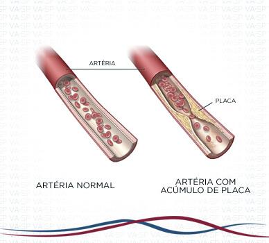 Imagem Angioplastia das Artérias da Perna - Bloqueio da Artéria