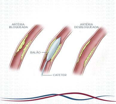 Imagem Angioplastia das Artérias da Perna - Balão