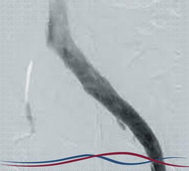 Imagem Síndrome de Cockett / May-Thurner - Figura 02