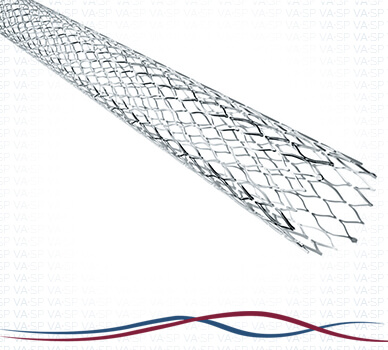 Imagem Síndrome de Cockett / May-Thurner -  Stent