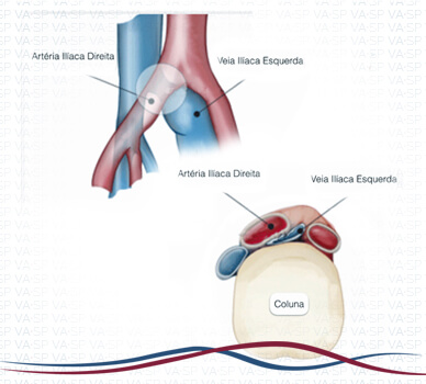 Imagem Síndrome de Cockett / May-Thurner -  Esquema