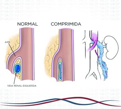 Imagem Síndrome de Nutcraker - Ilustração 02