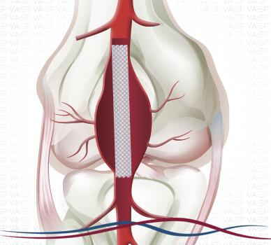 Imagem Aneurisma de Artéria Poplítea - Endoprotese Implantada
