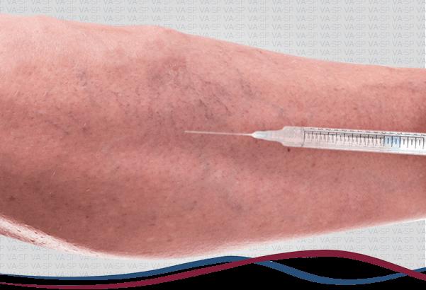 vascularsp-aplicacao-escleroterapia-thumb