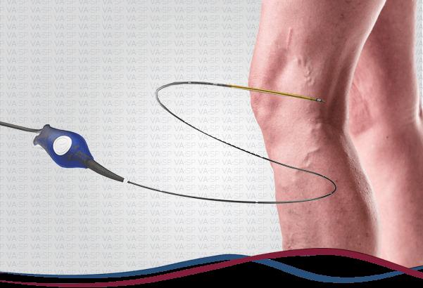 vascularsp-cirurgia-de-varizes-radiofrequencia-thumb