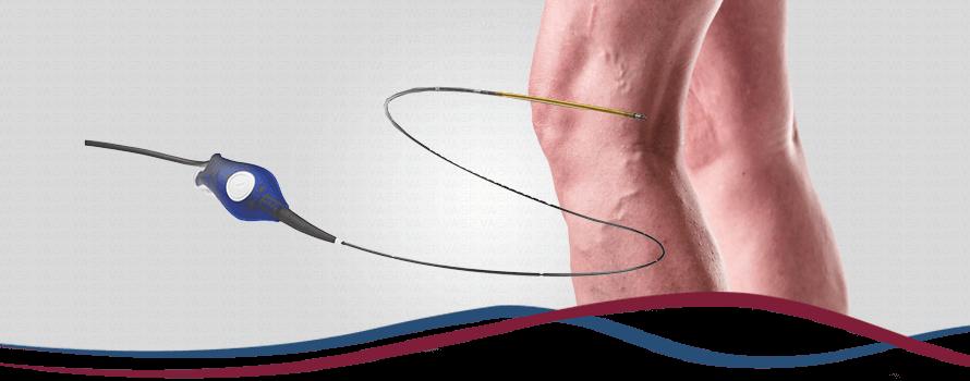 Imagem Cirurgia de Varizes (Radiofrequência)