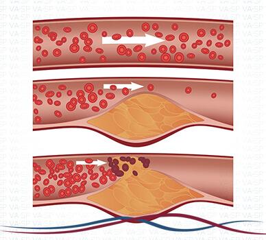 Imagem Estágios da Doença Vascular Periférica