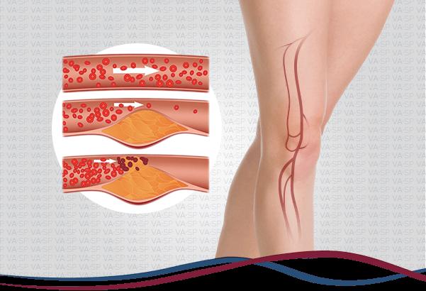 vascularsp-doenca-arterial-obstrutiva-periferica-thumb