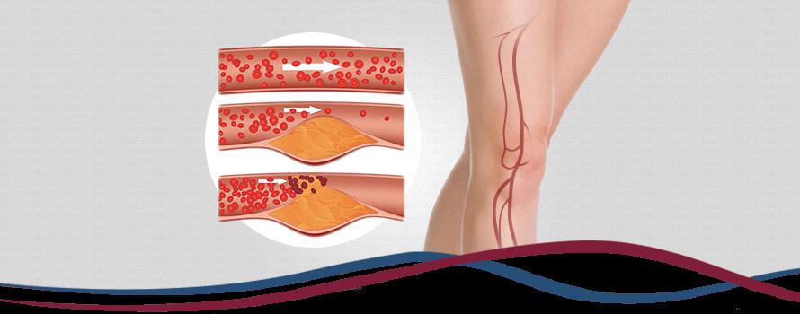 Imagem Doença Arterial Obstrutiva Periférica