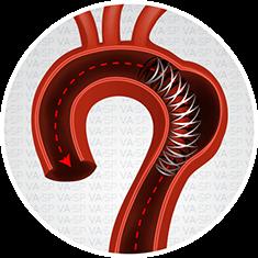 vascularsp-tratamentos-tratamentos-arteriais