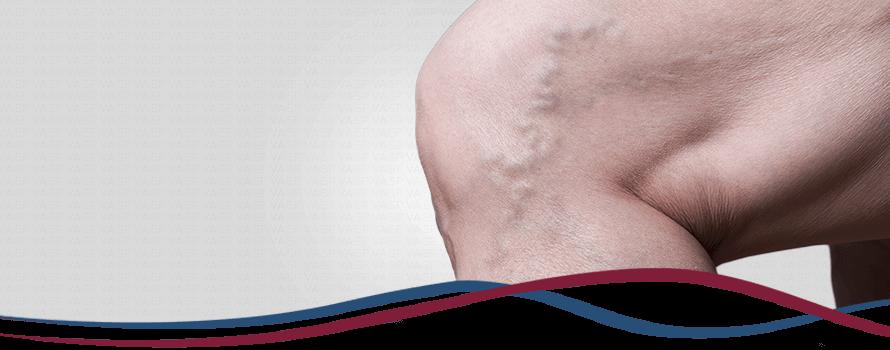 Varizes: O que são, Causas, Sintomas e Tratamentos